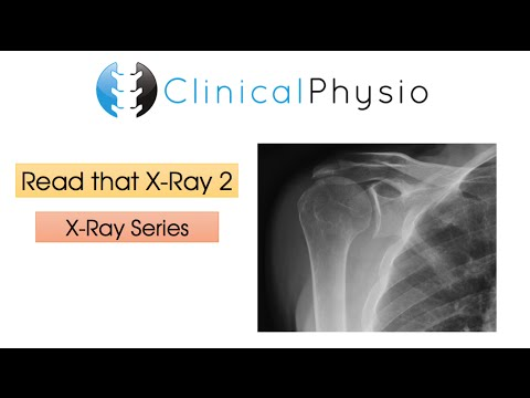 Read That X-Ray 2 | Clinical Physio