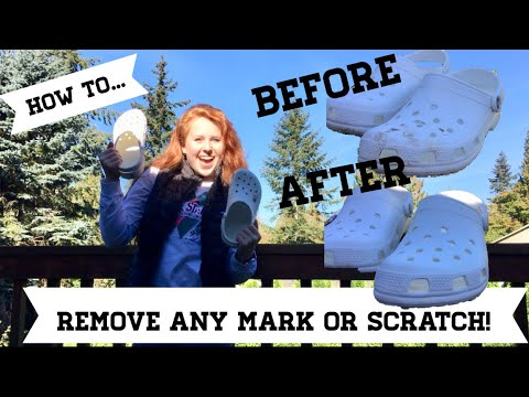 How To Remove Any Stain From Your Crocs