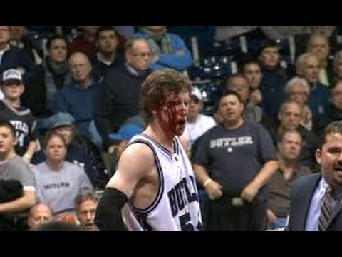 CRAZY BASKETBALL INJURIES(BLOODY)