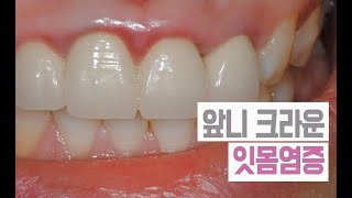 치아보철(크라운) 치료후 잇몸염증! 원인과 치료법