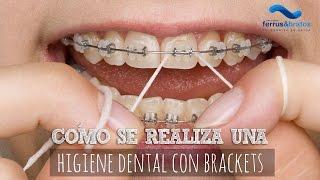 Cómo realizar una correcta higiene dental con brackets