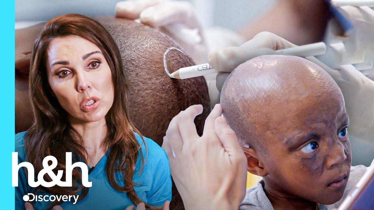 Nuevo cabello para pequeño sobreviviente de graves quemaduras | Cirugías Milagrosas | Discovery H&H