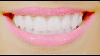 DIY: Get straight teeth FREE, FAST  at home! 自家製ブレース