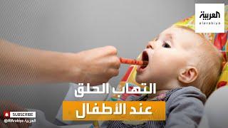 صباح العربية أسباب وطرق علاج التهاب الحلق عند الأطفال Youtube