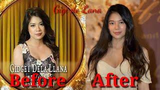 Download Gigi de Lana before and after plastic surgery | Mary Gidget dela Llana
