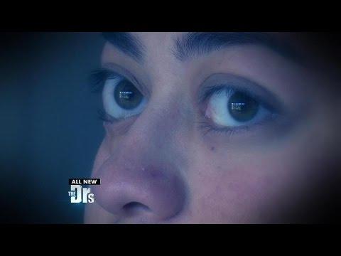 One Woman's Corrective Bulging Eye Surgery