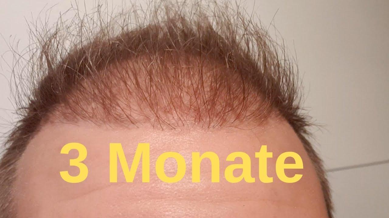 Nach monaten haartransplantation 4 Nach der