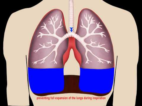 Image result for fluid in lungs