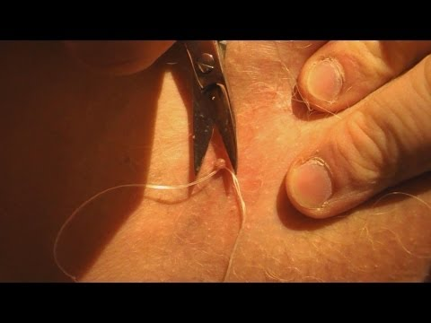Skin tag removal with string
