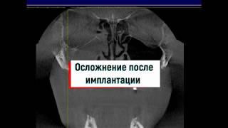 Импланты в пазухе. Гайморит . Осложнение. FESS