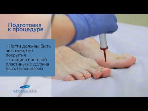 Лазерное лечение грибка ногтей/ Как избавиться от грибка навсегда