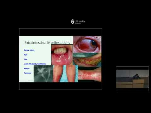 GR  02 13 17   Inflammatory Bowel Disease   Dr  Andrew Adams