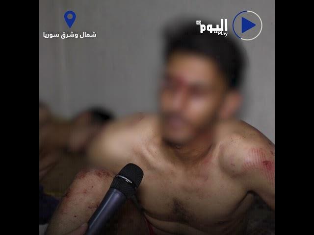 شمال وشرق سوريافيديو يوثق تعرض شبان للضرب والتعذيب على يد جندرما الاحتلال التركي