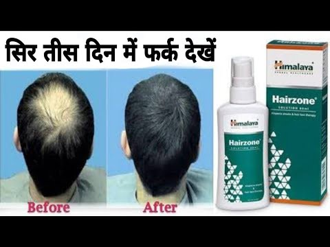 Himalaya Hairzone for Hair fall & hair growth, complete review, uses & side effects