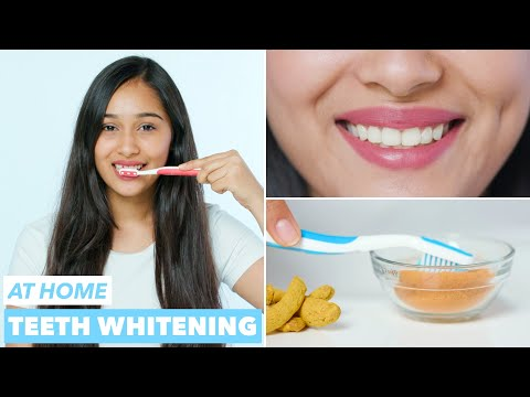Easy Teeth Whitening at Home