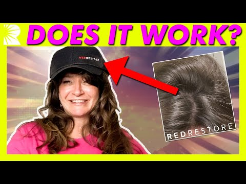 amy's-redrestore-laser-cap-results-update-|-before-&-after-laser-hair-growth-lllt-review-pictures
