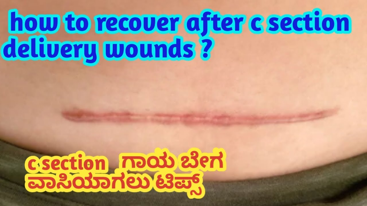 c section recovery video l food style l kannada
