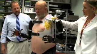 Revolutionary Brain-Controlled Prosthetic Limbs