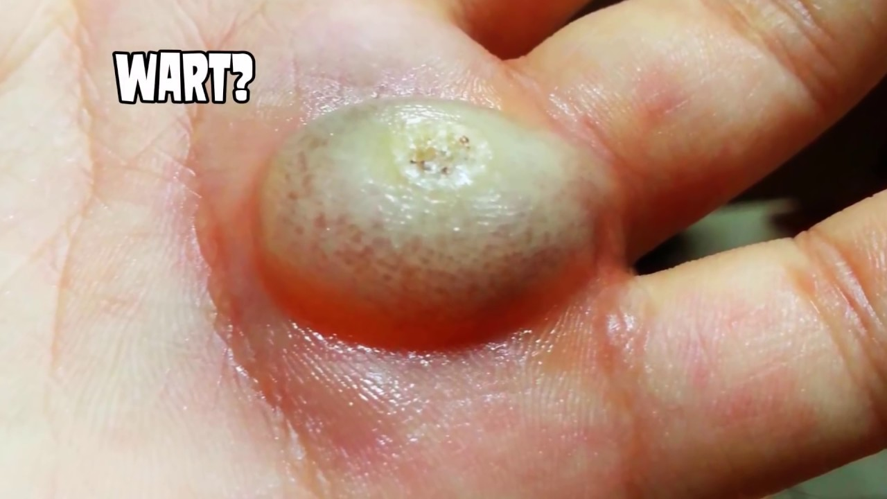 Infected Plantar Wart
