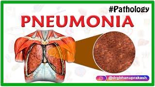 PNEUMONIA  -  PATHOLOGY ANIMATED VIDEO LECTURE