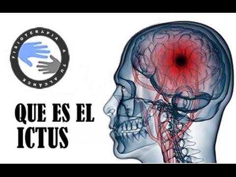 Hemorragia del tronco encefálico hipertensión
