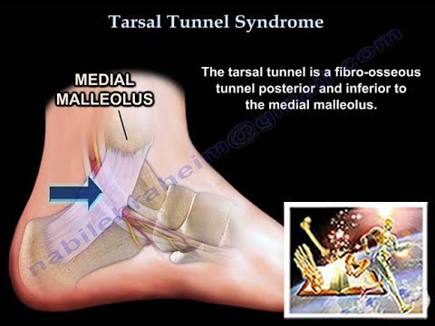 Tarsal Tunnel Syndrome - Everything You Need To Know - Dr. Nabil Ebraheim
