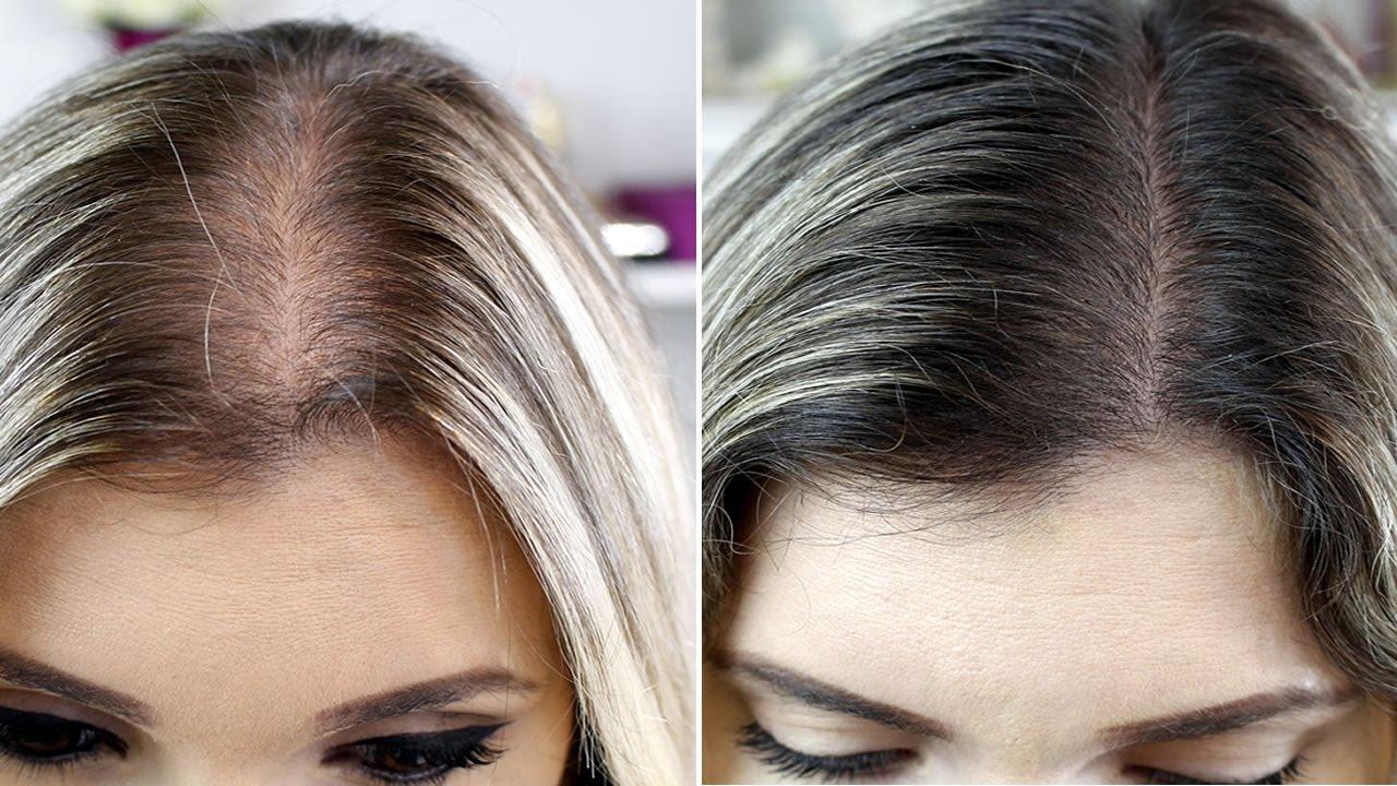 remédio para queda de cabelo dois