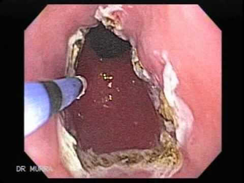 Barrertt Esophagus Ablative Therapy with APC.
