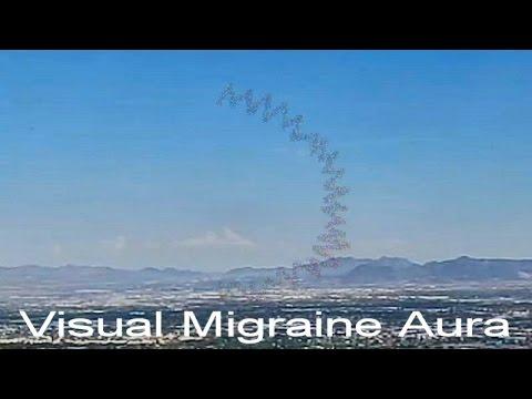 VISUAL MIGRAINE AURA