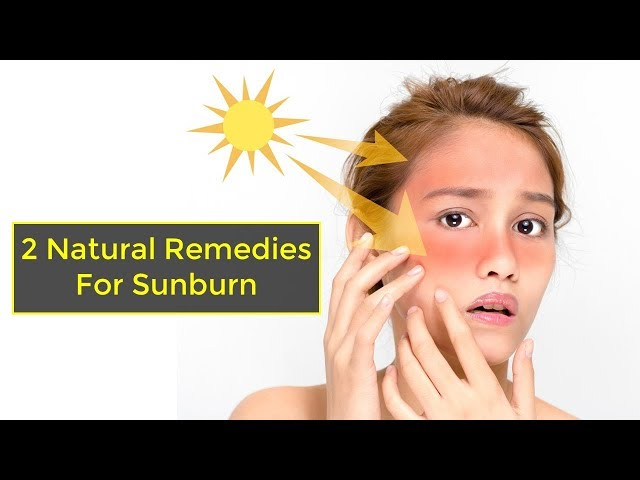 2 Natural Remedies for sunburn | How to Treat Sunburn