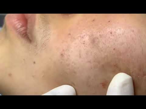 Baby Acne Milia Baby Care With Jenni June Youtube