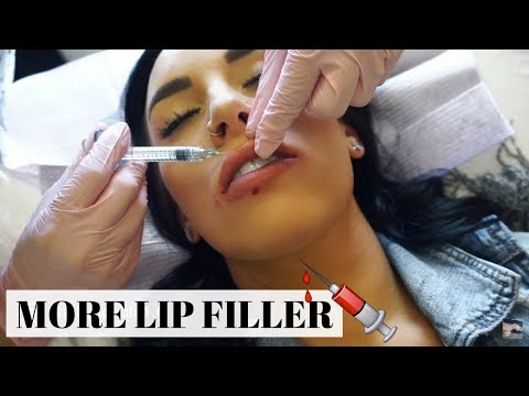 *GRAPHIC* I GOT MORE LIP FILLER - TEOXANE TEOSYAL KISS | Chels Nichole
