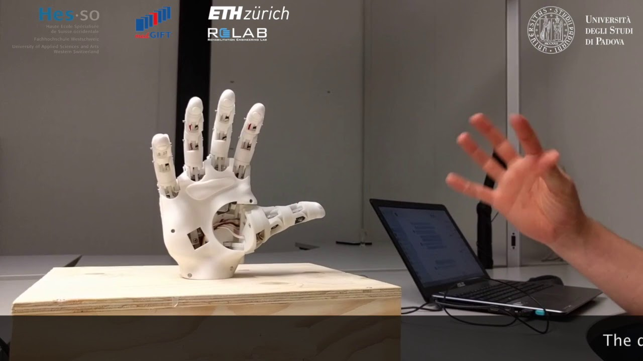 Myoelectric control of a 3D printed prosthetic hand