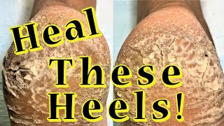 Heal These Heels!: Severe Callused and Cracked Heels