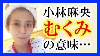 【悲報】<小林麻央> 足のむくみの意味は…癌の余命1ヶ月!? 小林麻央 ...
