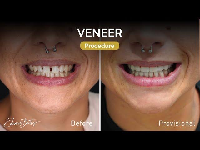 Dental Veneers - Provisional Stage