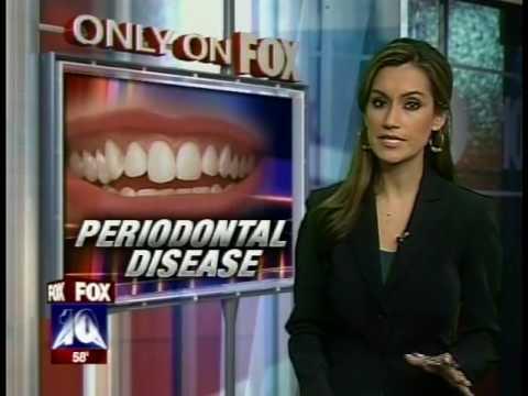 Stop Gum & Periodontal Disease, Avoid Gum Surgery, Protect Your Heart, Dr Schwartz -  Scottsdale AZ