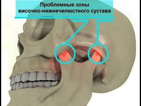 воспаление челюстной сустав лечение