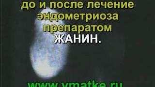 видео Аденомиоз: лечение с применением гормональных препаратов