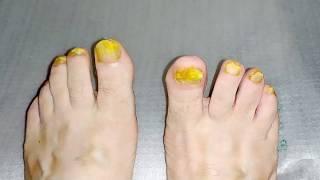 Грибок ногтей как вылечить Мой опыт лечения грибка