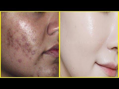 Remove DARK SPOTS/ACNE MARKS/PIMPLE MARKS/BLACK SPOTS Permanently - Get 100% Spotless Skin in 3 Days