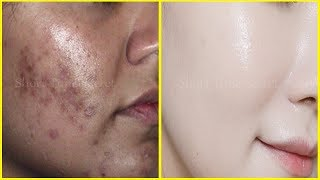 Baixar How to Remove BLACK SPOTS , DARK SPOTS & ACNE SCARS on face | ONLY in 3 days | 100% Spotless Skin
