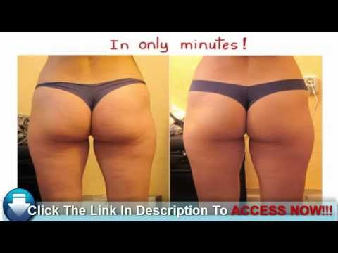 coffee grounds for cellulite before and after