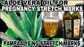 PAANO MAALIS ANG STRETCH MARKS GAMIT ANG ALOE VERA OIL|Pregnancy Stretch marks Remedy|Aloe vera oil-