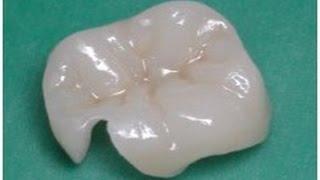 Как восстанавливают зуб керамической вкладкой. Ортопедическая стоматология .(, 2015-06-14T14:45:08.000Z)