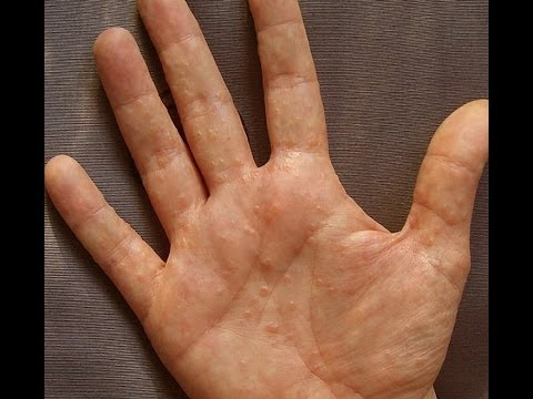 Itchy Hands and Feet | MD-Health.com