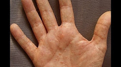 hqdefault - White Pimple On Palm Of Hand