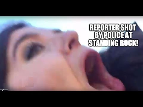 WEB EXCLUSIVE: Police SHOOT Reporter w/ Rubber Bullet DURING INTERVIEW At Standing Rock!