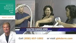 Sculpted Arms | CoolSculpting San Diego | Dr. William Groff