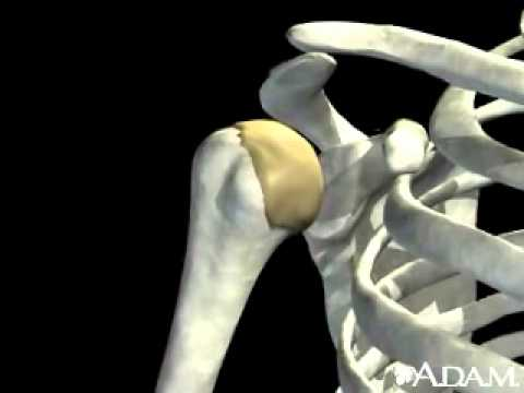 Shoulder joint dislocation
